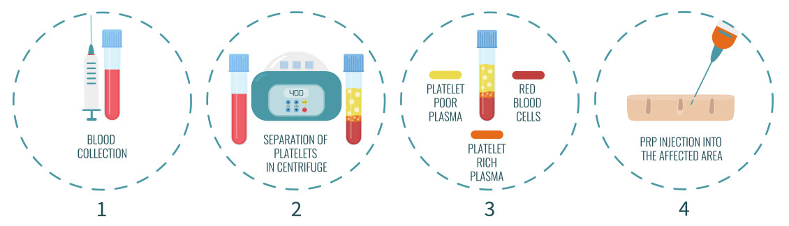 Platelet Rich Plasma Therapy Steps