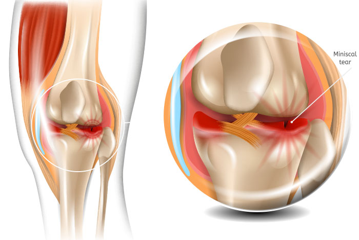 Regenerative Medicine for Meniscus Injuries