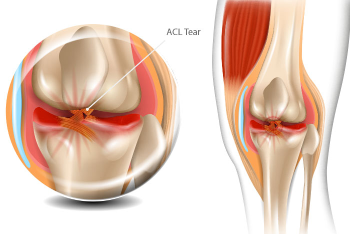 Regenerative Medicine for ACL Tears