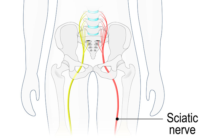 Regenerative Medicine for ​Sciatica